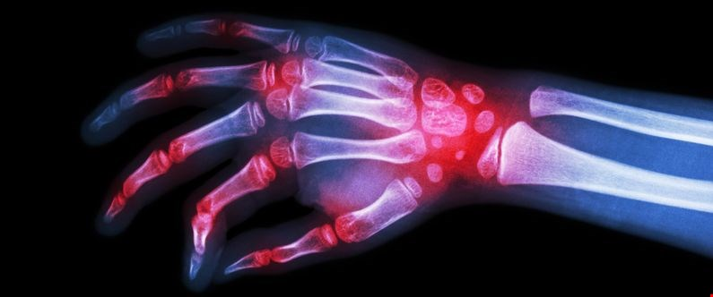 WCM-Q helps set arthritis guidelines